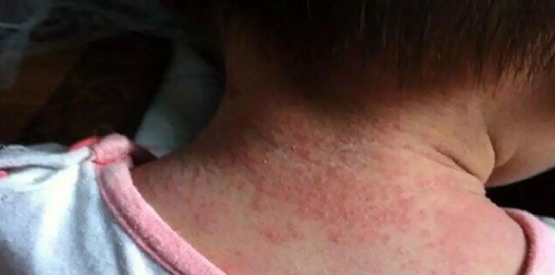 炎炎夏日,痱子和湿疹你能分清楚吗?