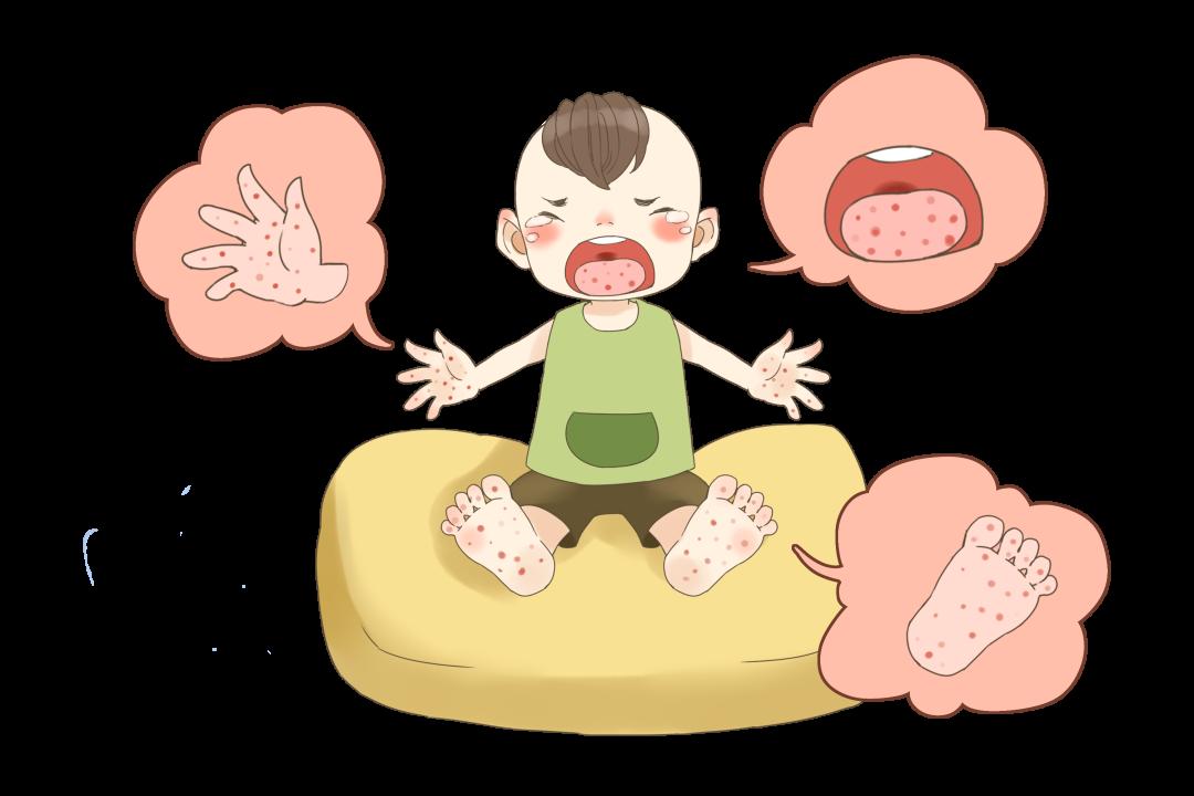 手足口病高峰期来了!5岁以下孩子是重点目标