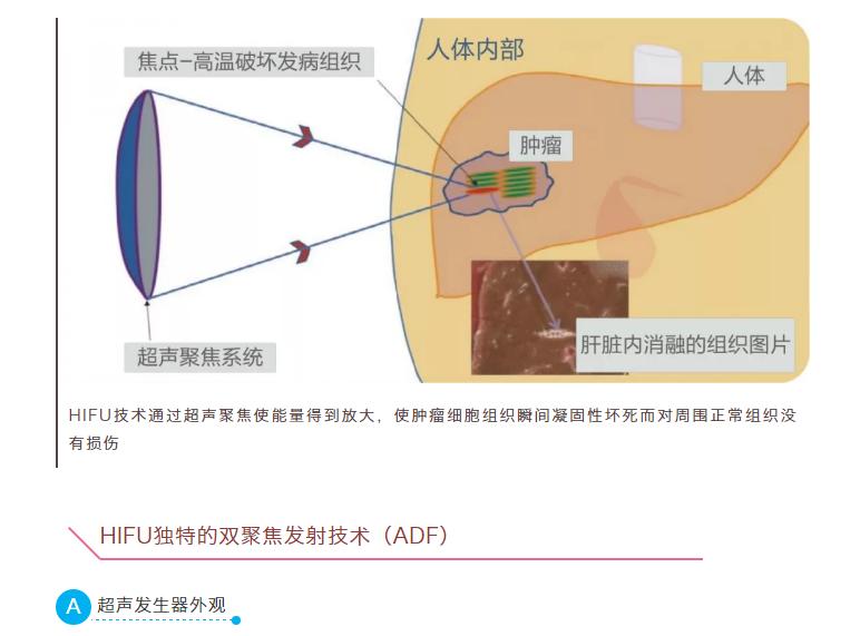 HIFU-2001 慧康高强度聚焦超声无创肿瘤治疗系统