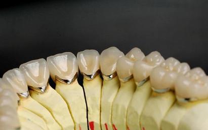 LAVA固定牙