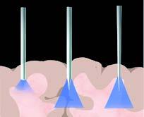 PlexBright在体光遗传学系统