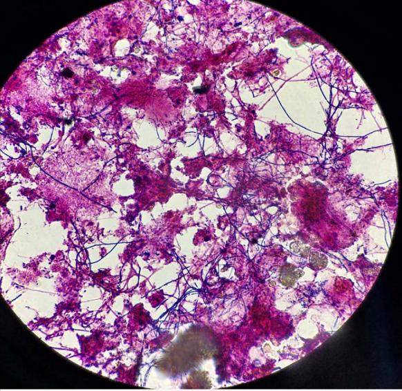 污泥膨胀原因及解决方法——丝状菌抑制菌
