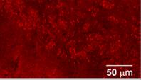 AB5458 Neprilysin