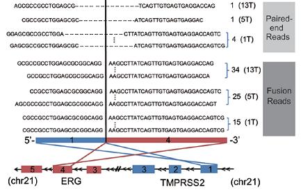 三个前列腺癌样品中的TMPRSS2-ERG 基因融合