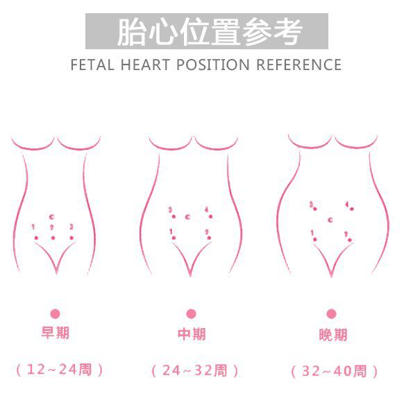 超声多普勒胎儿心率仪4_力新仪器