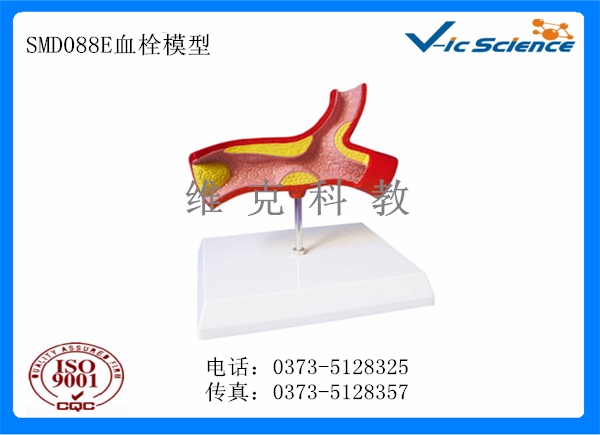 SMD088E血栓模型