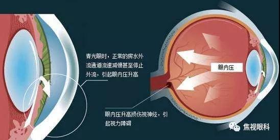 焦视眼科医院