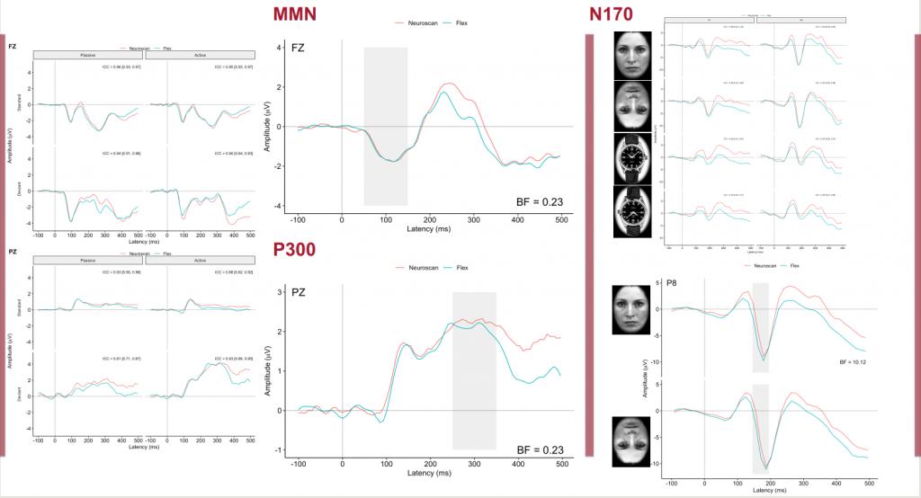便携式EEG系统