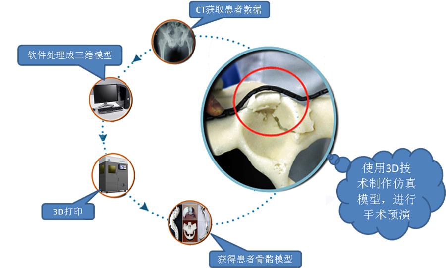 3D打印医疗应用