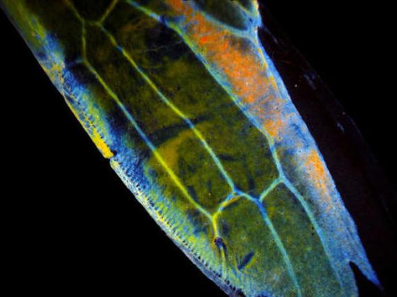 生物有機肥中的幾丁質酶