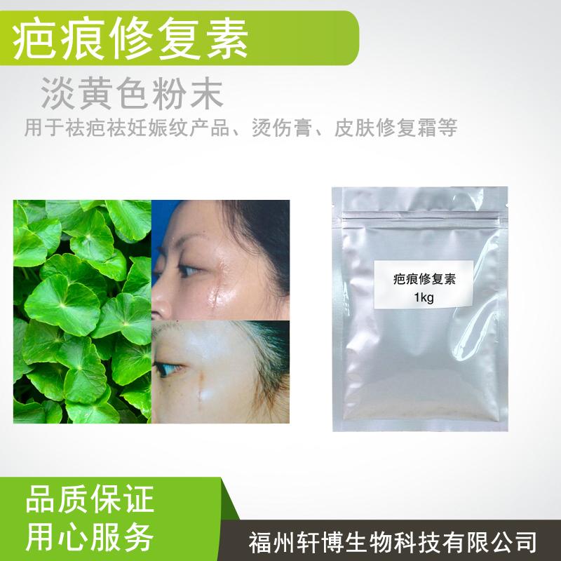 疤痕修复素,积雪草苷,人参皂苷,祛疤,祛妊娠纹,烫伤膏,皮肤修复霜原料