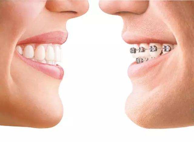 厦门牙齿矫正的流程