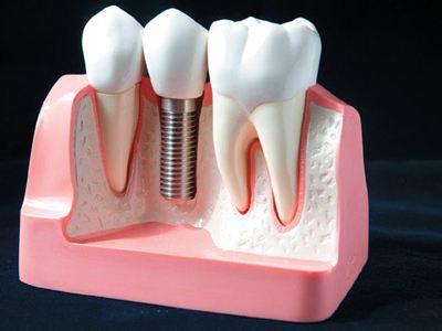 想要成功的牙齿种植需要具备什么条件