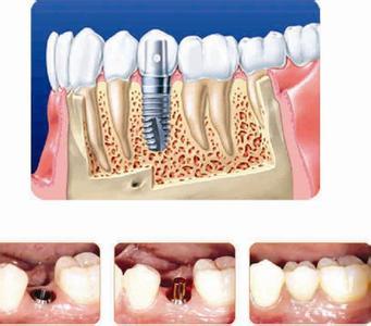 厦门牙齿种植一般寿命多久呢
