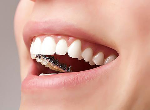 做牙齿种植是否存在风险?如何降低