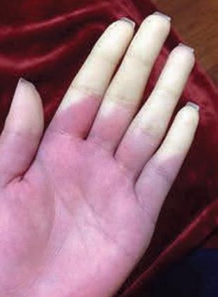 振动伤害-白指