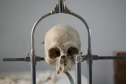 死亡原因与死亡方式鉴定
